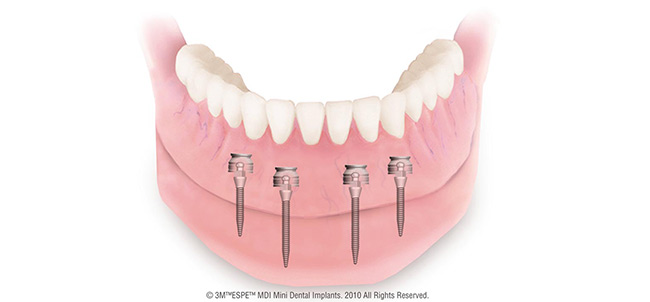Mini Dental Implantate