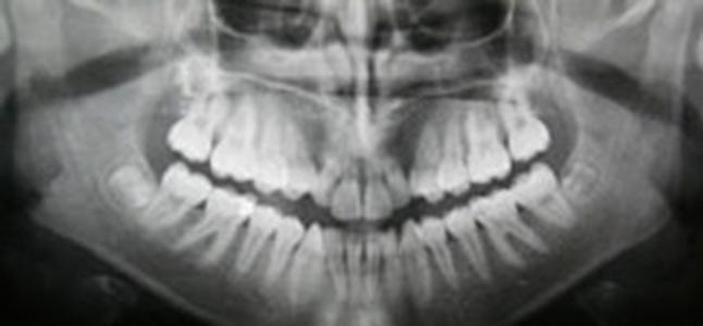Zahnreinigung Buchholz