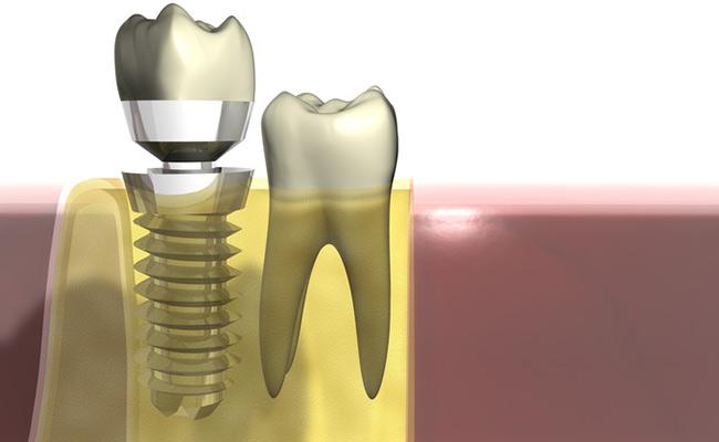 Implantate für Ihre Zahngesundheit in Buchholz